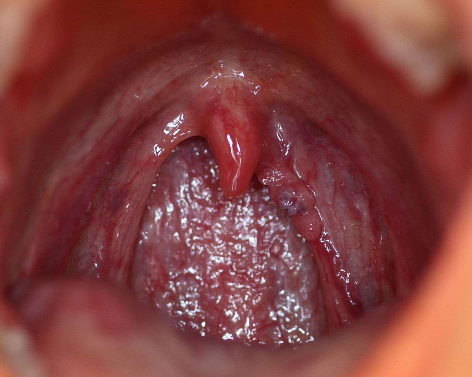 Hpv warts mouth look like - Traducere