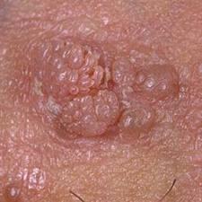 infection a papillomavirus chez l homme)