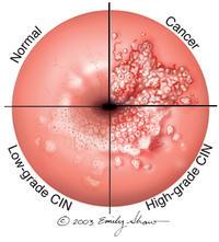 papilloma virus cellule anomale
