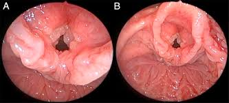 papillomatosis sintomas oxiuri viermi