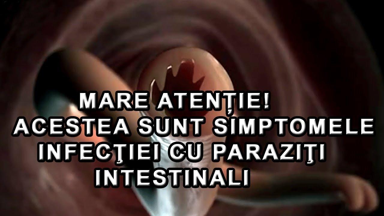 paraziții interni sunt exemple