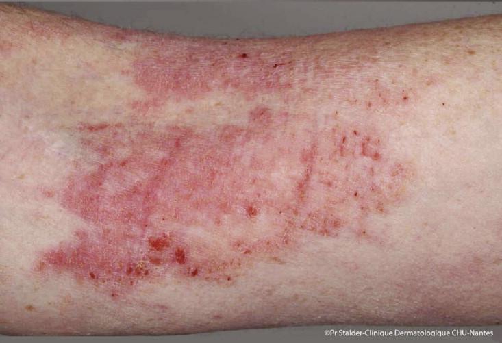 dermatite atopique)