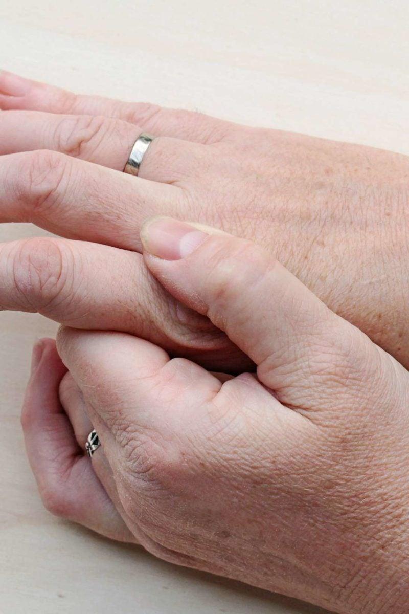 Skin warts on hands pictures, Capturi de ecran