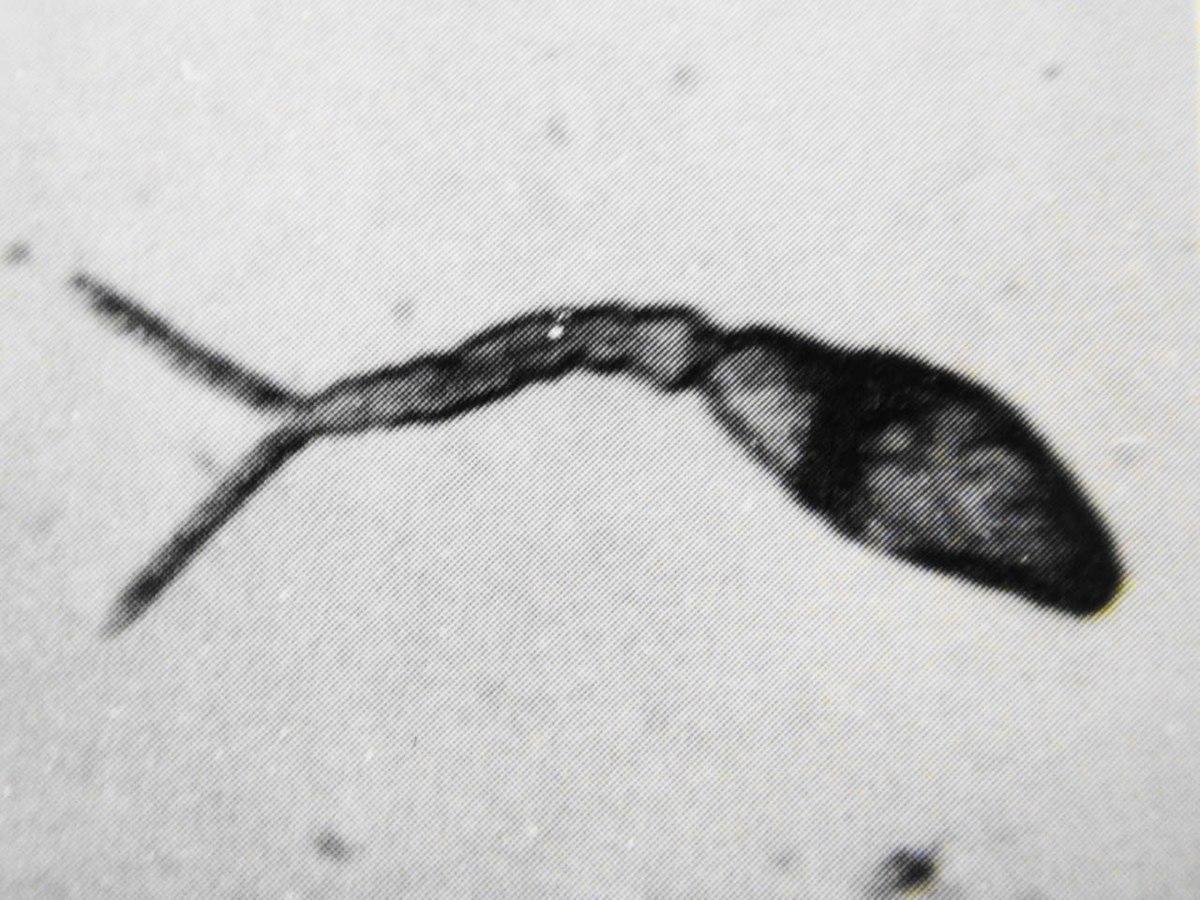 jaterni paraziti)