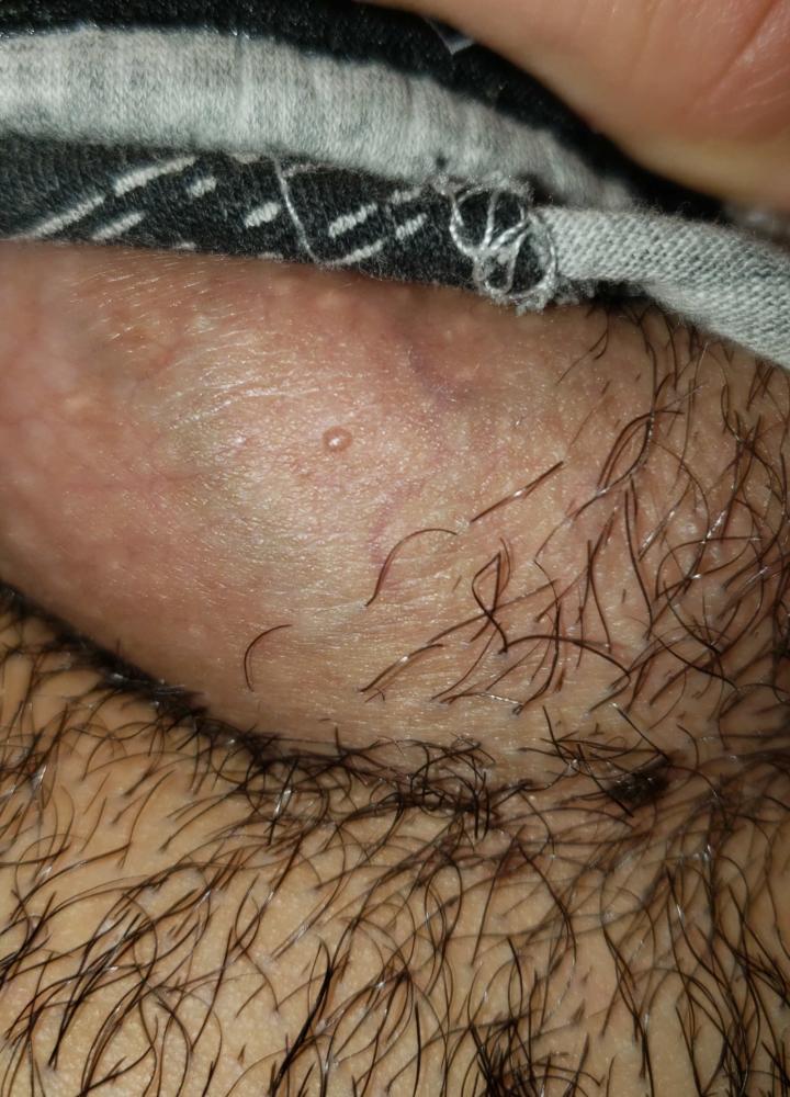 Hpv type 2 genital warts,