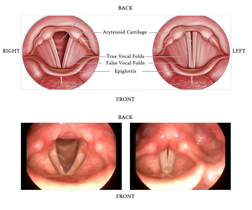 hpv throat polyps)