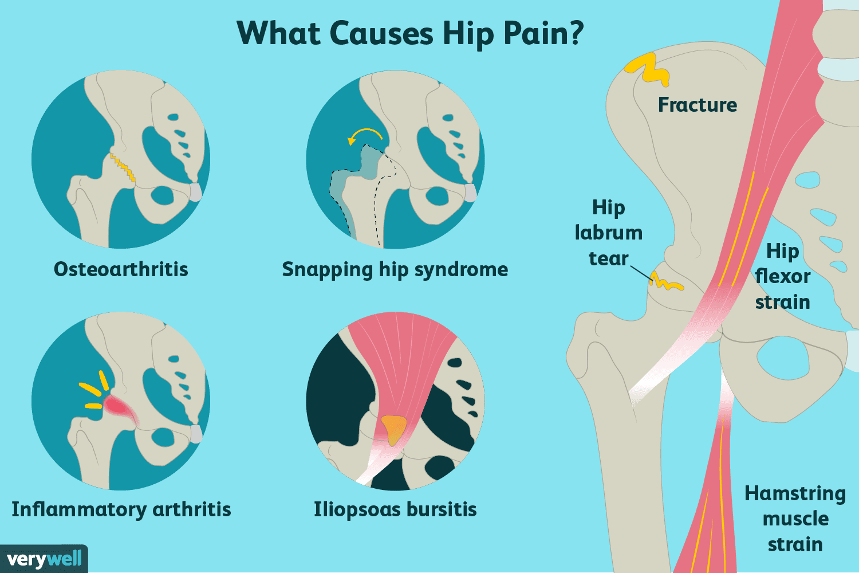 metastatic cancer hip pain)