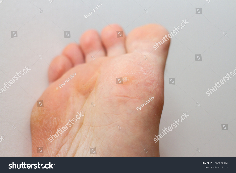 wart on foot white