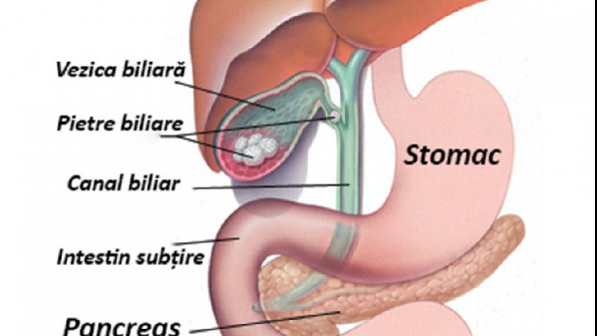 cancerul vezicii biliare)