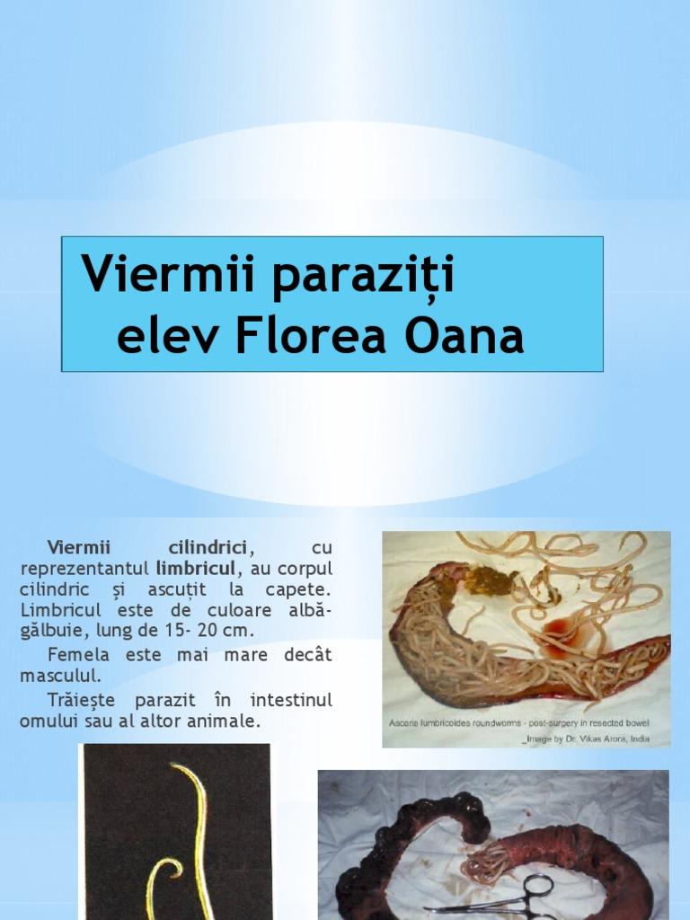 paraziții acvatici sunt viermi)