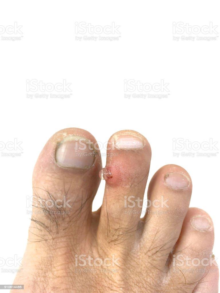 Wart on foot baby, Verruca - Postere și Tablouri, Tablouri pe Pânză, Fototapete