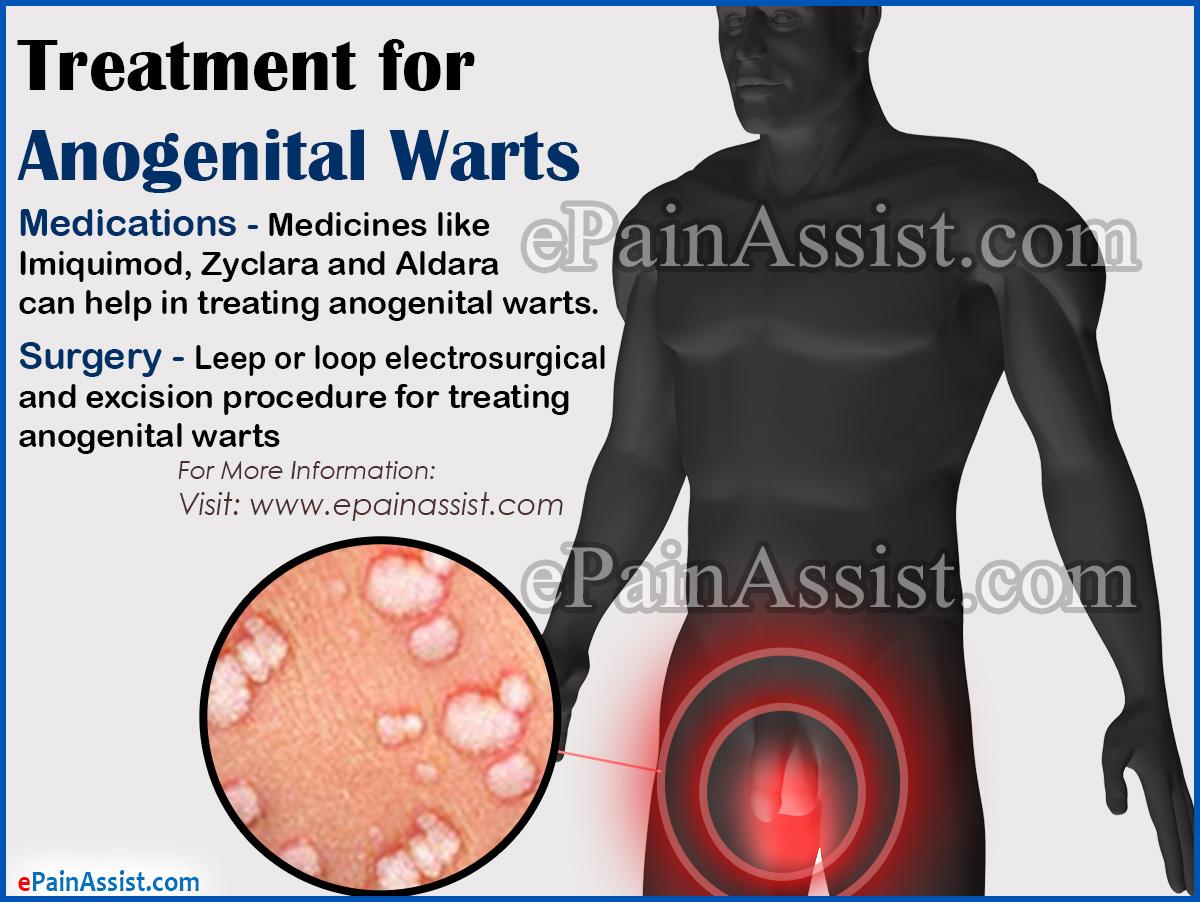 warts tca treatment)