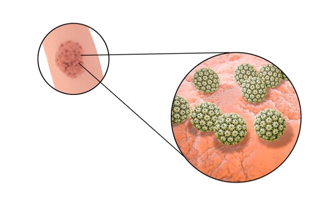 papilloma virus femminile sintomi)
