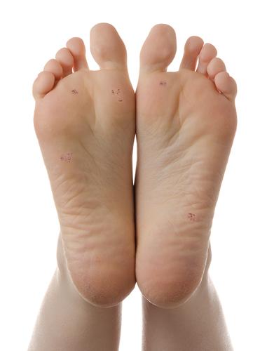 verruca foot symptoms