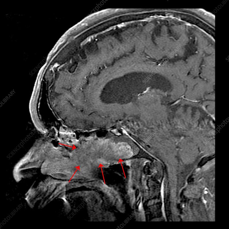 Inverted papilloma frontal sinus mri. Specificații