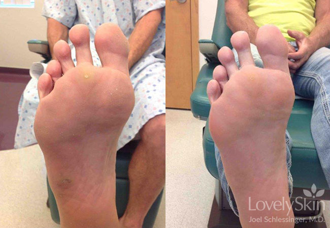 Plantar wart on foot black dots