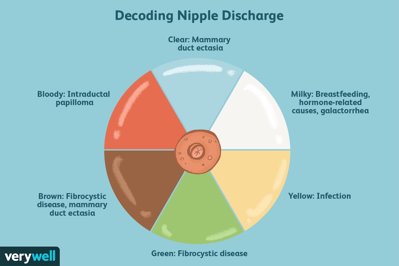 Intraductal papilloma diagnosis