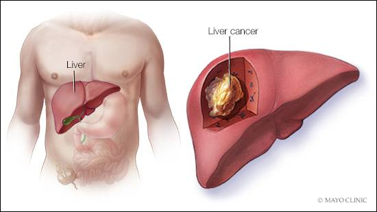 simptome cancer hepatocelular