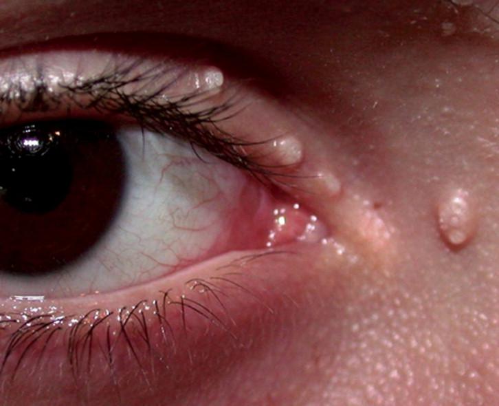 que es un papiloma en el ojo)