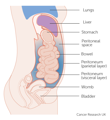 Peritoneal cancer fluid build up