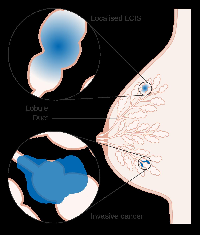 papiloma intraductal cie 10)