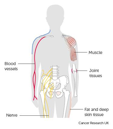 Gastric cancer undifferentiated Que es papiloma virus humano pvh