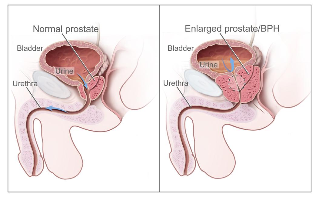 cancer de prostata que hacer