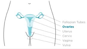 ovarian cancer definition