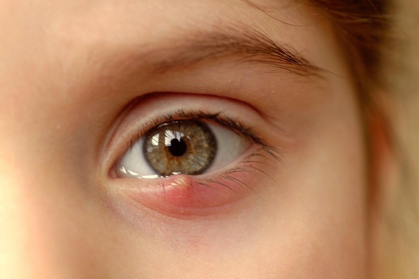 Principalele afectiuni ale ochiului | divastudio.ro
