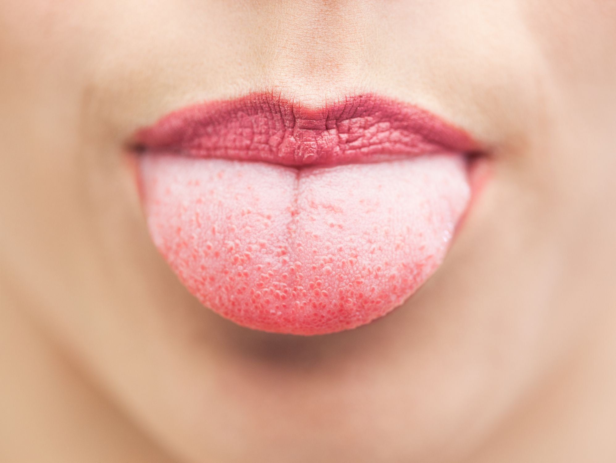 swollen papillae tongue treatment)