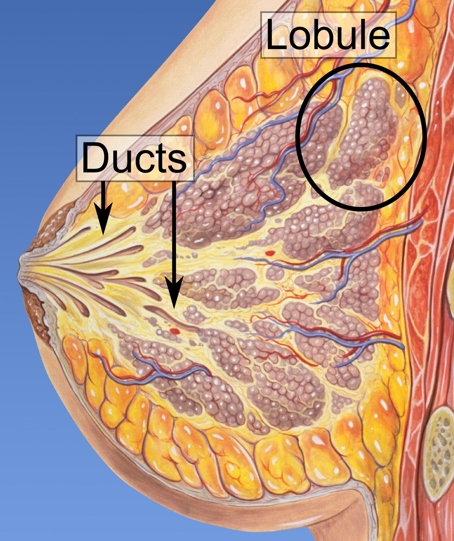 ductal papilloma means)