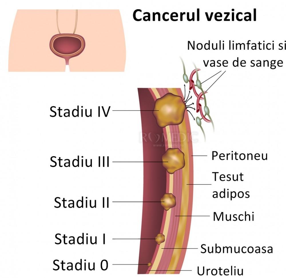cancerul vezical