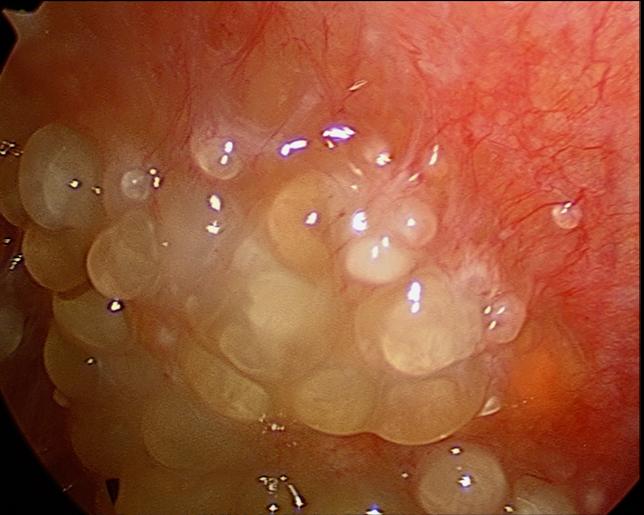 abdominal cancer nodules)