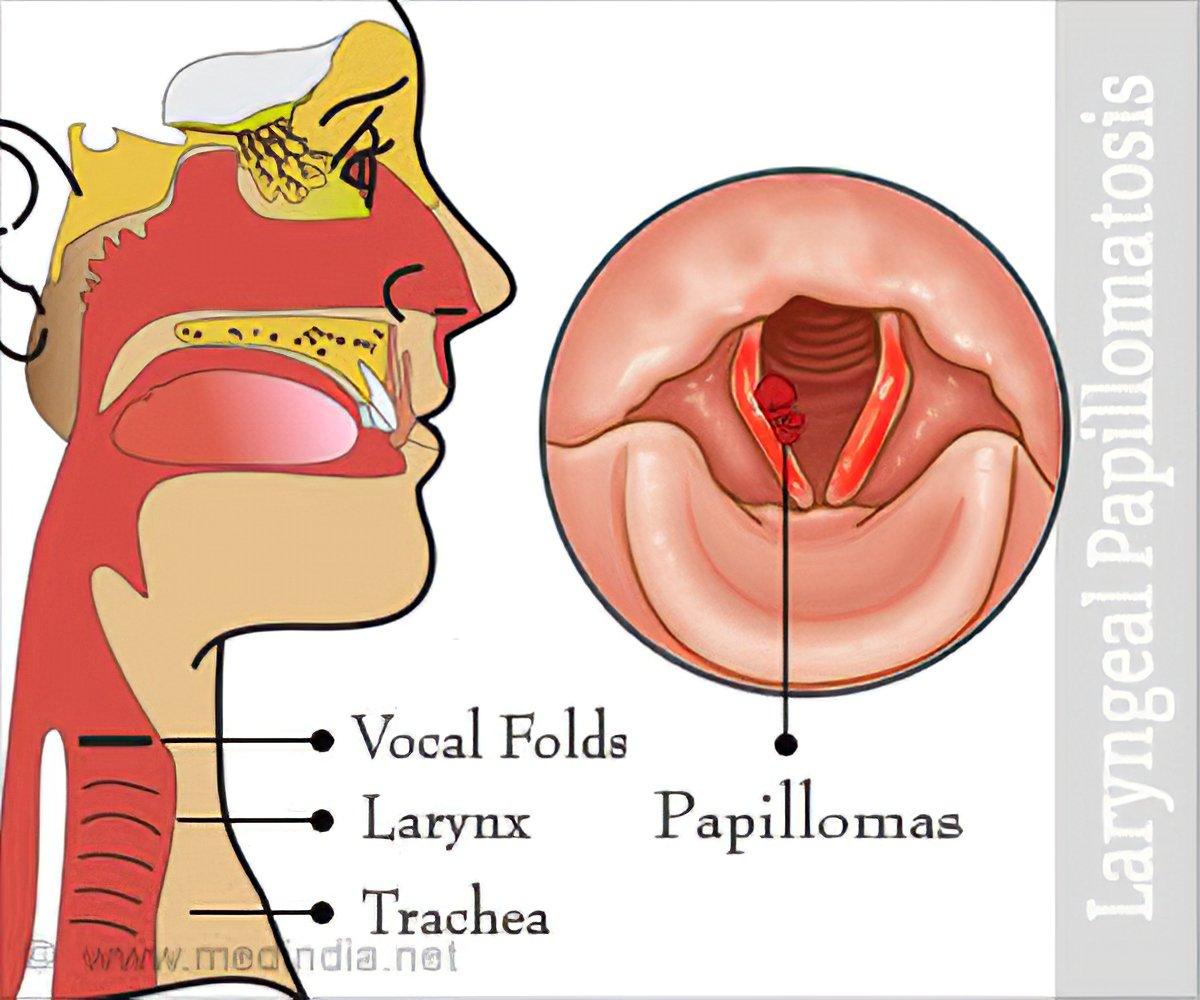 respiratory papillomatosis symptoms