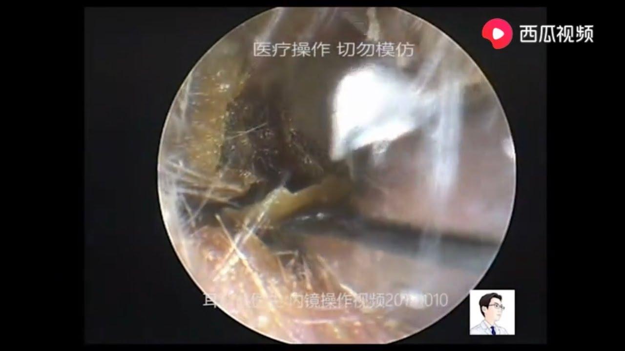 papiloma juvenil adalah)