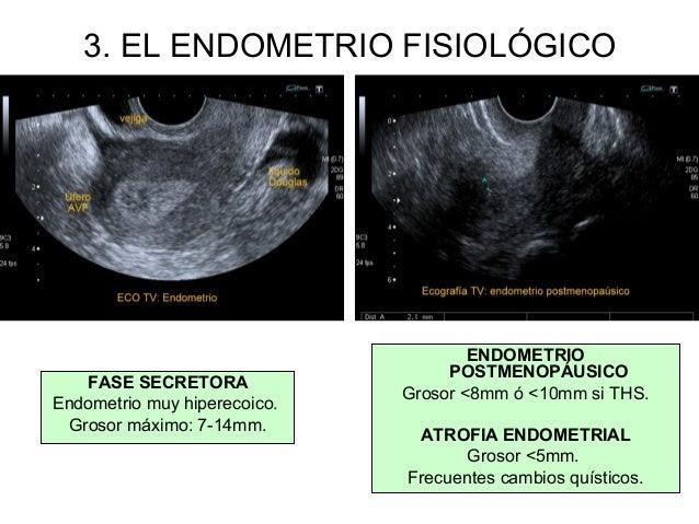 cancer endometrial ecografia