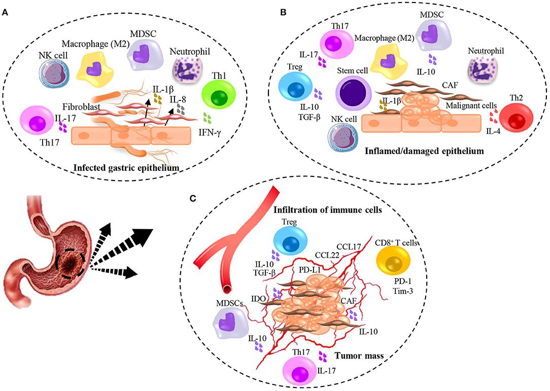 gastric cancer vascular invasion)