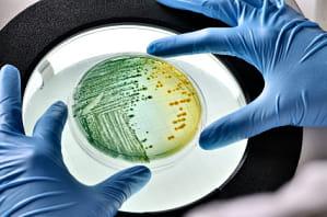 Oxiuros es grave, Oxiuri - totul despre boala parazitara