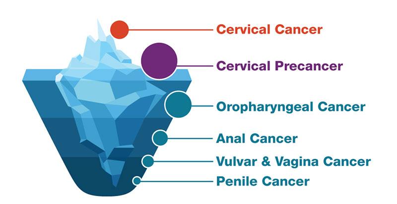 hpv cancer link)