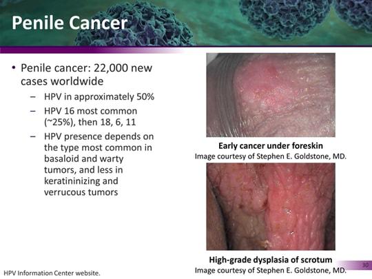 viermi sunt simptome ale femeilor prevenirea pastilelor pentru tratamentul viermilor