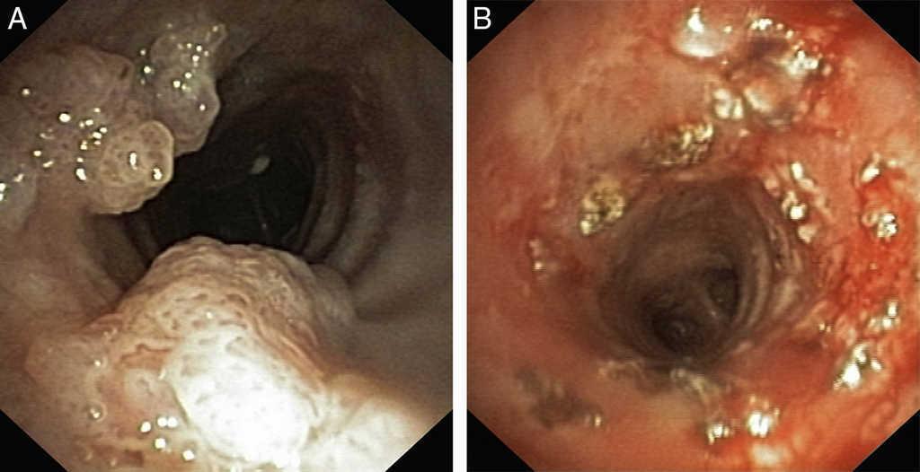 laryngeal tracheal papillomatosis