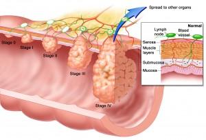 Hpv warts vs hemorrhoids - Cancerul de canal anal - aspecte legate de diagnostic și tratament