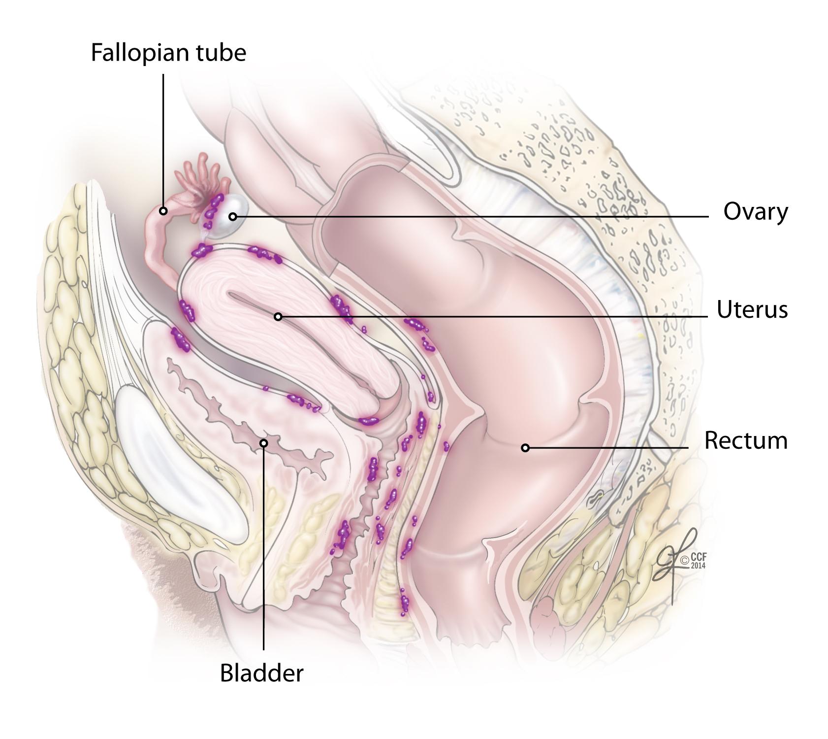 peritoneal cancer ovarian)