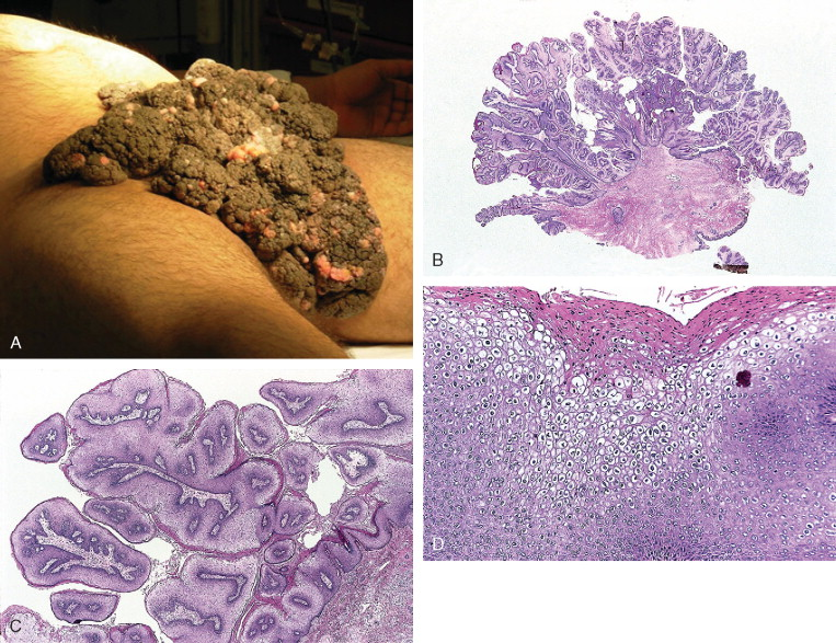condyloma acuminatum hpv strains simetrie corporală platyhelminthes