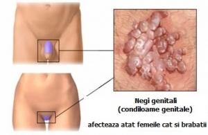 hpv genital simptome