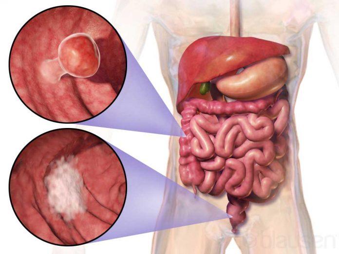 cancer de colon la copii simptome)
