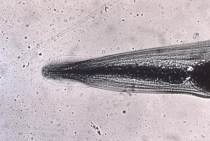 Lamblia la gravidă ,ce preparate trebuie tratate pentru viermi - Enterobius vermicularis leczenie