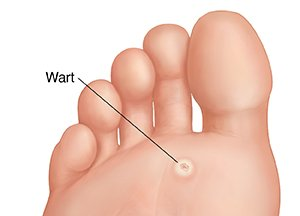 wart on his foot)