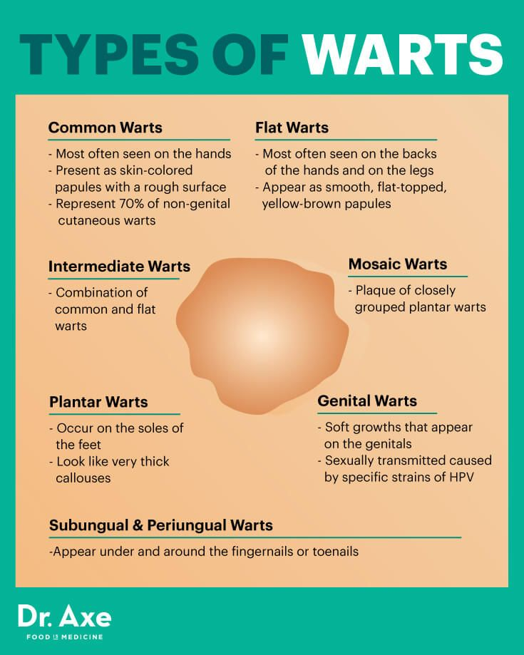 Hpv warts treatment natural