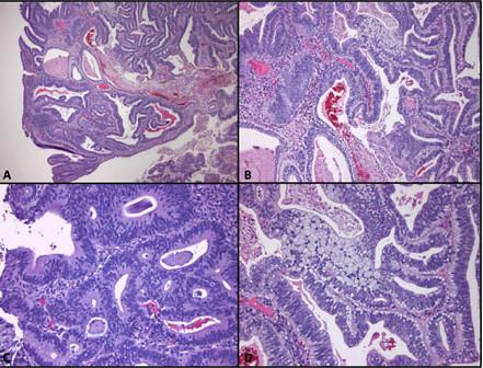 colorectal cancer histopathology)